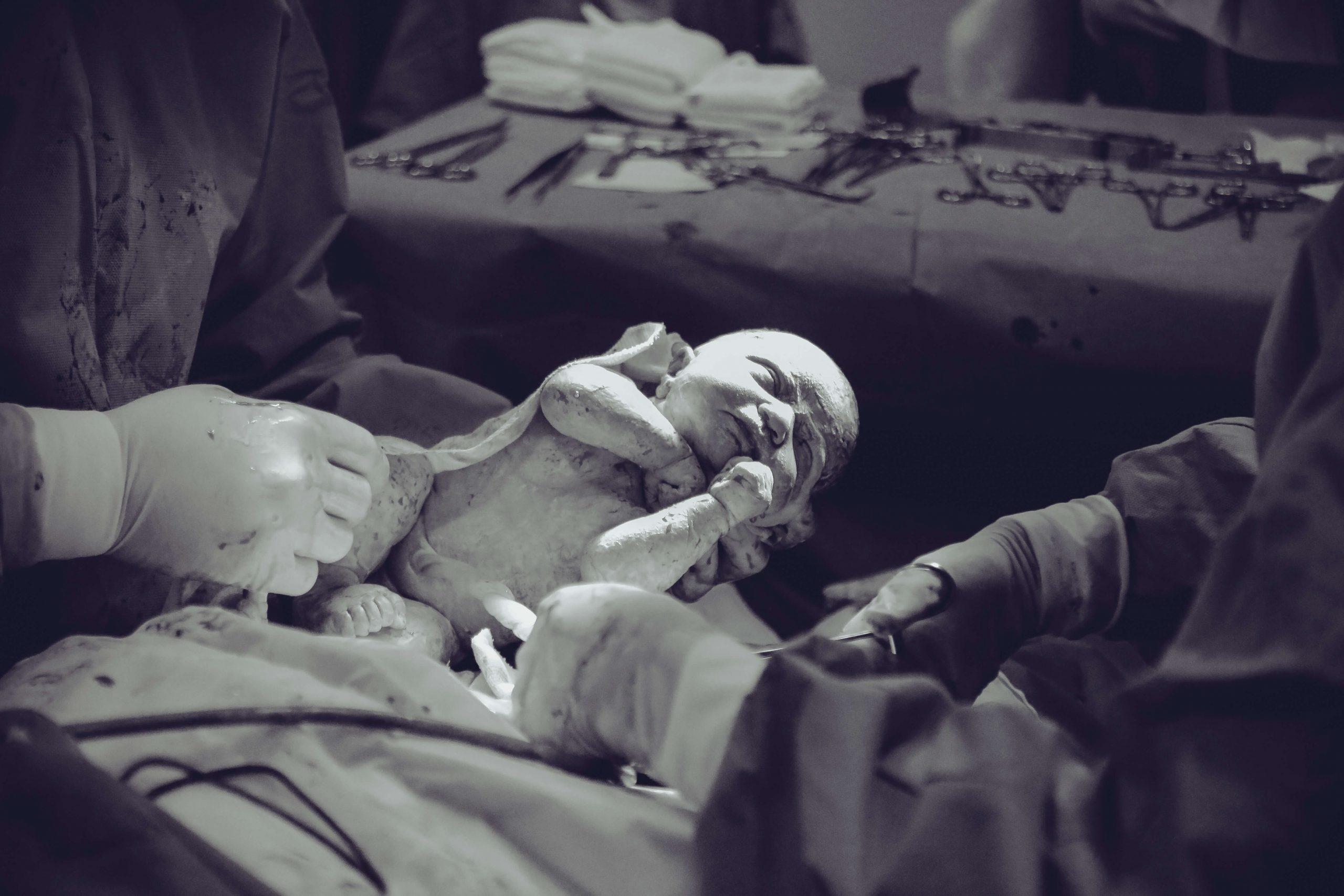 Bebé recién nacido en una cesárea en el hospital